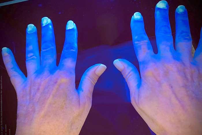 Unter Schwarzlicht leuchten Hautreale, die von Desinfektionsmittel benetzt sind. (Foto: Celenus Kliniken)